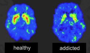 Addiction affecting the brain
